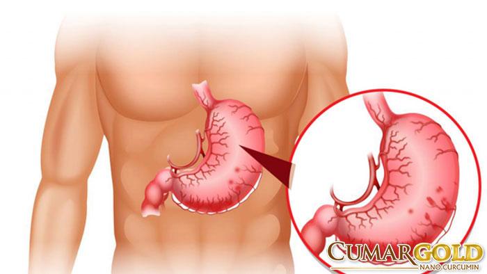 Nano curcumin có tác dụng hỗ trợ điều trị loét dạ dày tá tràng