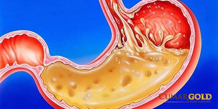 Acid dịch vị tiết ra nhiều là một trong những nguyên nhân gây loét dạ dày