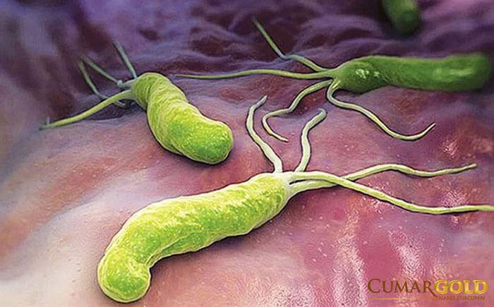 Hình ảnh minh họa vi khuẩn HP
