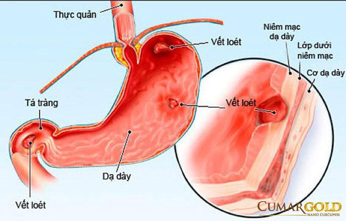 Hình ảnh viêm loét dạ dày tá tràng