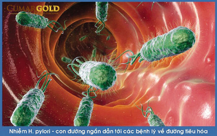 Có nên diệt vi khuẩn HP không