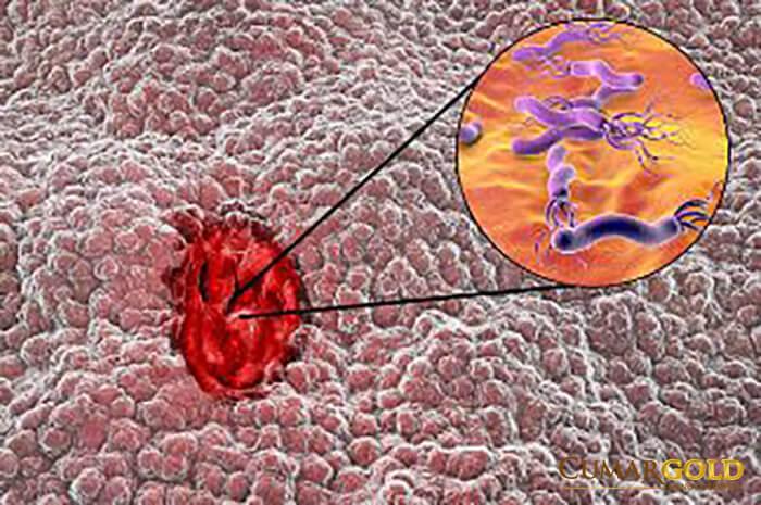 Hình ảnh vi khuẩn HP xâm nhập dưới lớp lót dạ dày