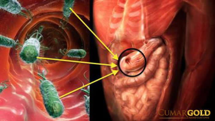 Vi khuẩn HP gây ra những tác hại nào đối với sức khỏe