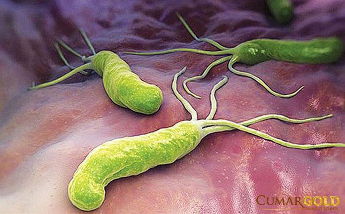 Vi khuẩn HP có tự hết không?