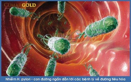 9 thông tin bạn nên biết khi bị nhiễm vi khuẩn HP dạ dày