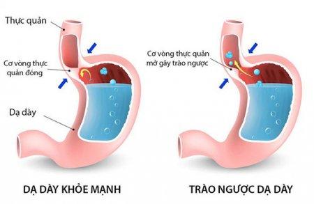 4 cách khắc phục viêm dạ dày thực quản trào ngược