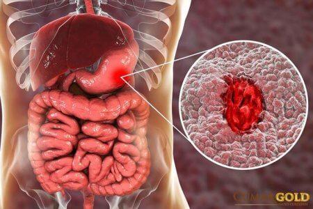 2 mẫu bệnh án viêm loét dạ dày tá tràng