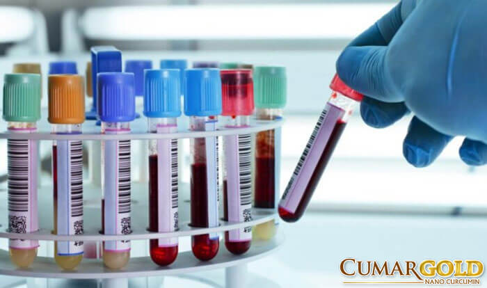 Xét nghiệm máu cho bệnh nhân  bị đau dạ dày