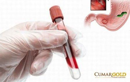 Có hay không sự tồn tại vi khuẩn HP trong máu?