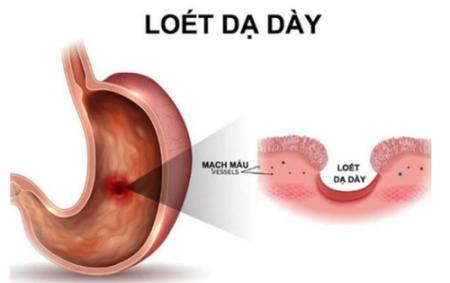 Bệnh viêm loét dạ dày cấp tính, nguyên nhân và cách chữa