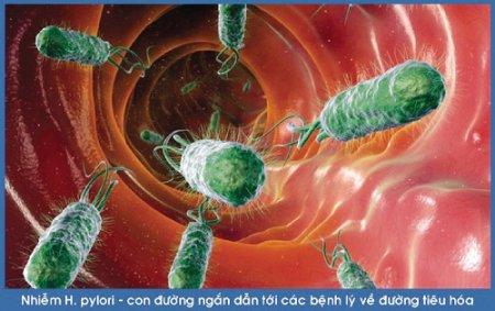 Phân tích vi sinh để biết vi khuẩn h pylori thuộc nhóm vi sinh vật nào?