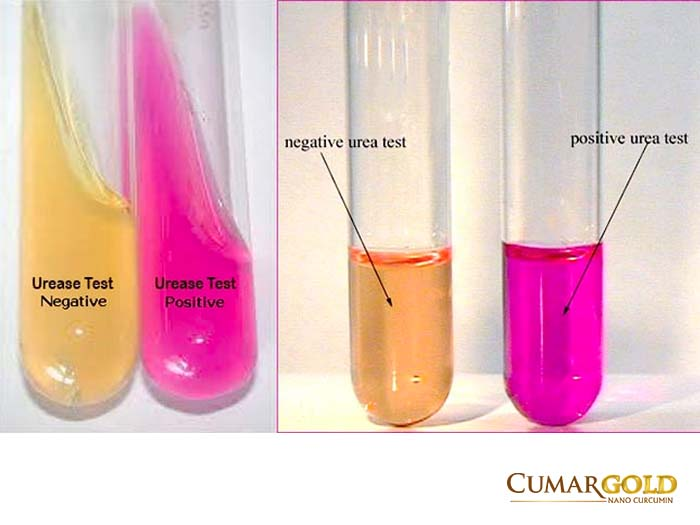 test enzyme ureas