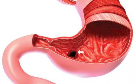 Tại sao viêm loét dạ dày hay tái phát, trở thành bệnh mạn tính?