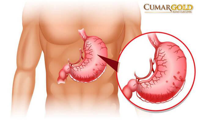 Bệnh đau dạ dày ngày càng trở nên phổ biến
