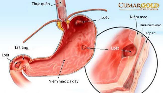 Kiến thức chung về viêm dạ dày